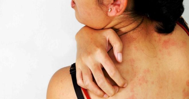 Эффективное лечение дерматита