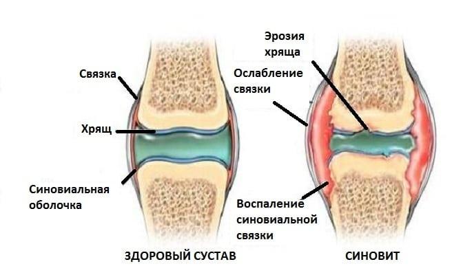 Cиновит коленного сустава