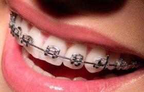 О зубах и брекетах: мой личный опыт
