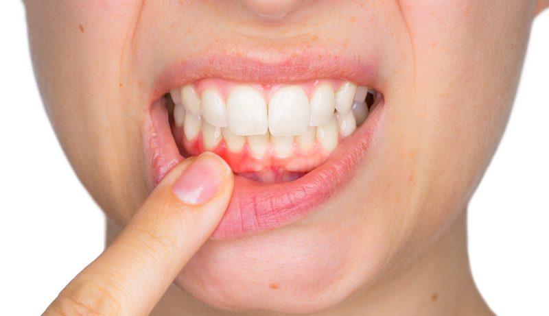 Потеря зуба имеет серьезные последствия