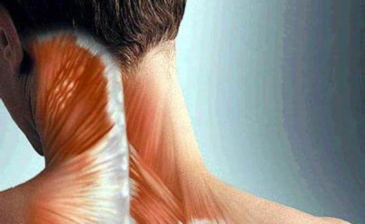 Цервикогенная головная боль: причины и симптомы