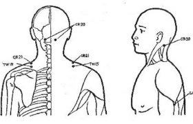 Точки для снятия боли в области плечевого сустава