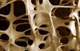 Почему курение и алкоголь влияют на хрупкость костей