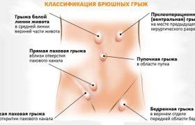 Хирургическое вмешательство – оптимальный метод удаления грыж живота