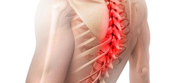 Грыжа шейного отдела позвоночника — симптомы, лечение