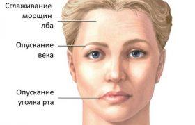 Паралич: симптомы и лечение