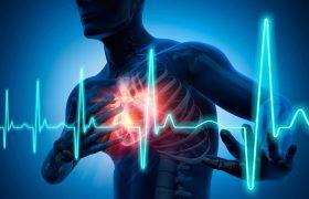 Можно ли пережить сердечный приступ и не знать об этом?