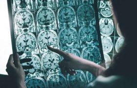 Лекарство против астмы может стать спасением от болезни Альцгеймера