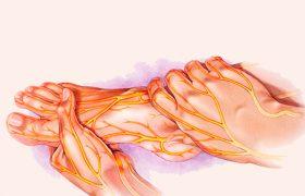 Как лечить неврит народными средствами