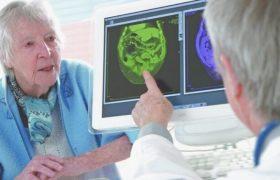 Ученые выяснили, как остановить развитие болезни Альцгеймера