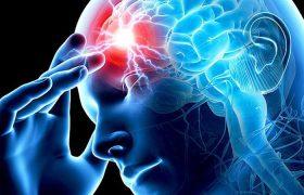 Инсульт головного мозга. Прекращение функционирования клеток мозга.