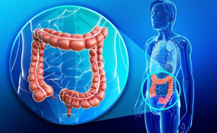 Описание язвенного колита кишечника