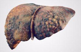 Гепатит С, что это такое и как с ним бороться