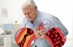Ишемическая болезнь сердца. Симптомы и лечение