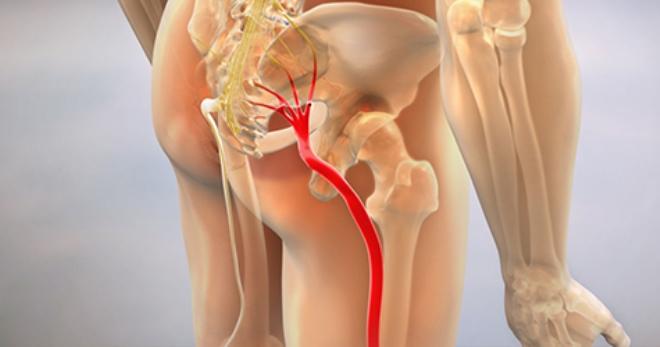 Седалищный нерв – строение, функции и возможные болезни