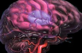 Депрессия увеличивает риск инсульта у женщин