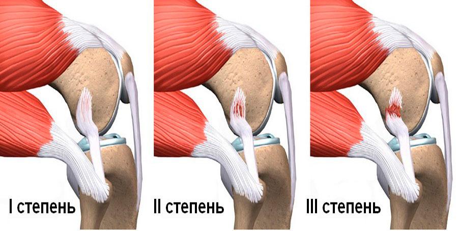 Растяжение связок в колене — проверьте его причины, виды, симптомы и лечение