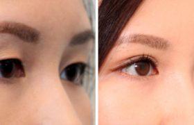 Глазной тик: как остановить непроизвольное подергивание