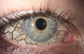 Как избавиться от синдрома сухого глаза?