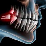Удаление зубов мудрости - когда необходимо?