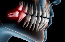 Удаление зубов мудрости — когда необходимо?