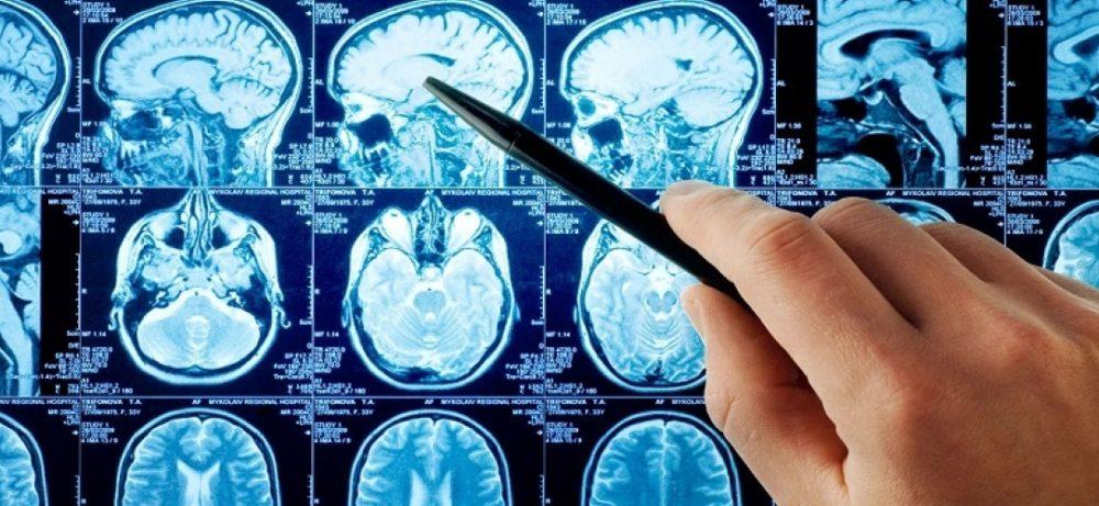 Причины возникновения болезни Паркинсона