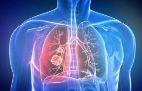 Биопсия рака легких – показания, суть и результаты процедуры