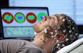 Электроэнцефалограмма (ЭЭГ): всё о методе и его особенностях
