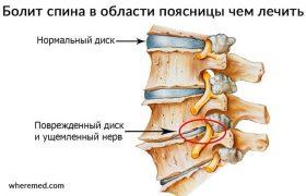 Болит спина в области поясницы? Узнай чем лечить