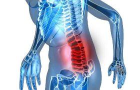 Нейропатические боли в спине