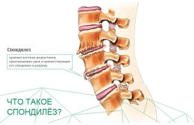 Спондилез позвоночника: стадии, симптомы и лечение