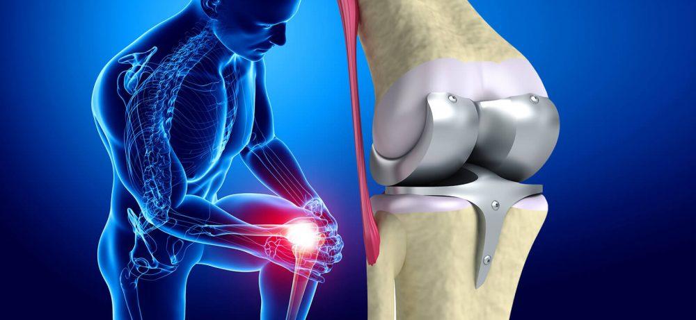 Что такое эндопротезирование суставов