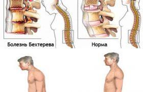 Болезнь Бехтерева – лечение