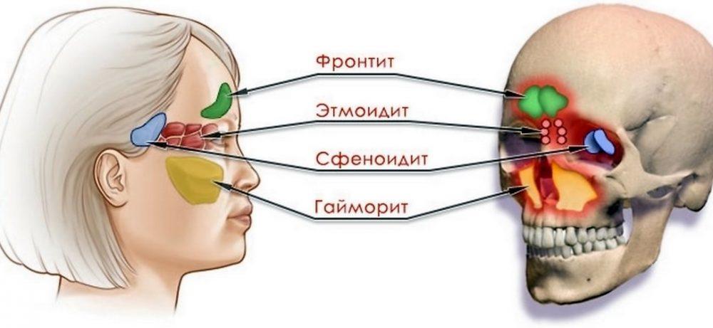 Сфеноидит. Что это за болезнь?