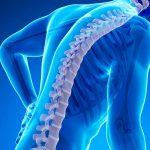 Остеопороз у женщин: причины, симптомы и лечение