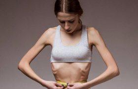 Анорексия: как вовремя заметить расстройство пищевого поведения