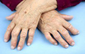 Ревматоидный артрит: симптомы, диагностика и лечение