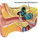 Вестибулярный нейронит