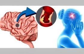 Инсульт — можно ли предотвратить?