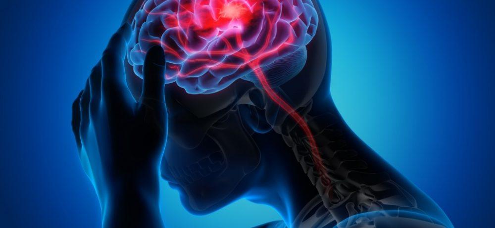Инсульт и инфаркт – в чем отличия?