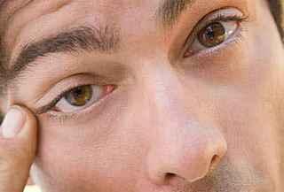 Нервный тик или блефароспазм