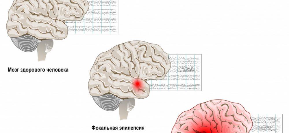 Причины появления эпилепсии