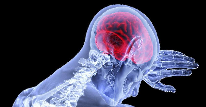 5 самых непонятых неврологических заболеваний