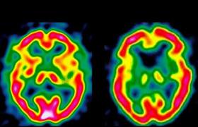 Энцефалопатия: диагностика и лечение